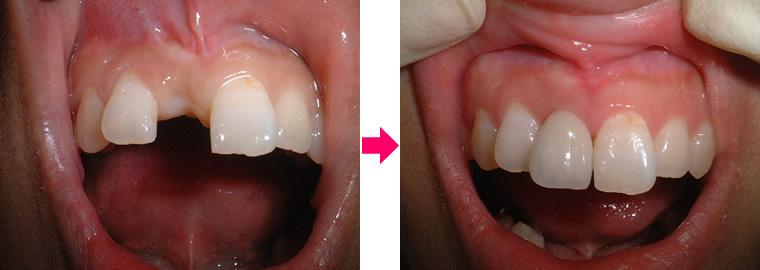 (写真)右上中切歯欠損 診療前後の比較