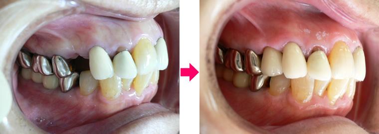 (写真)右上第1小臼歯 診療前後の比較