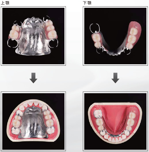 (写真)金属床義歯(自費治療)