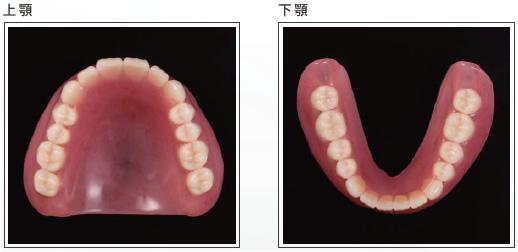 (写真)レジン床義歯(保険治療)