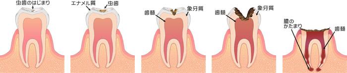 (イラスト)虫歯の進行 C0~C4