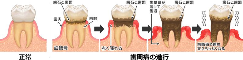 歯周病の進行を表したイラスト